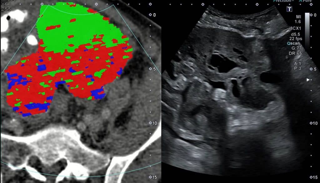SCan Images: CT habitat-guided US fusion biopsies. On the left side of the figure, the CT with the CT texture habitat overlay is shown. The tumour habitats are highlighted in green, red and blue, respectively. On the right side, the fused US image is shown.