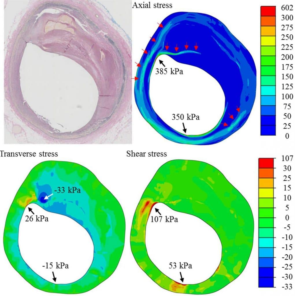 Image: High stress concentration in the atherosclerotic plaque might lead to structure failure
