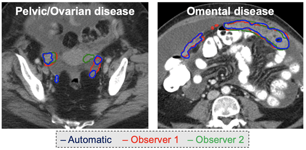 Image: Segmentation examples for a pelvic/ovarian lesions and an omental lesion. The automated and manual segmentations from two observers are displayed. The colour legend is shown at the bottom of the figures.