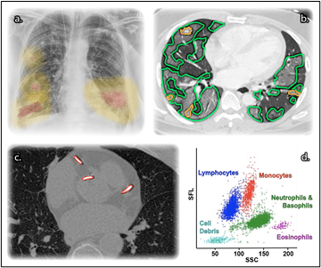 Image: Our collaboration has identified five promising applications of machine learning in the COVID-19 pandemic. The AIX-COVNET collaboration's vision for a multi-stream model incorporates multiple imaging segmentation methods (a., b. and c.) with flow cytometry (d.) and clinical data. (a. A saliency map on a radiograph, b. Segmented parenchymal disease on a CT scan, c. Segmentation of calcified atherosclerotic disease, d. A projection of a flow cytometry scatter plot of side-scattered light (SSC) versus side fluorescence light (SFL), giving insight into cell structures (analysis performed on a Sysmex UK (1) flow cytometer). (Radiological images from NCCID/NHSX (2). Used with permission.) (Image originally created by Dr Ian Selby for our piece in RSNA Radiology AI).